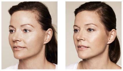 Før- og etterbilde Restylane behandling