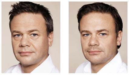 «Før og etter»-bilde Restylane behandling