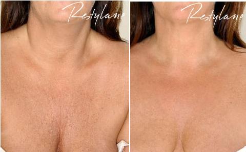 Bilde av brystregionen på den dame før og etter behandling med restylane.