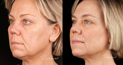 Bilde av en dame før og etter behandling med Restylane. Huden er glattere og rynkene færre.