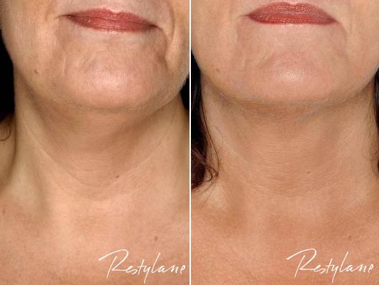 Bilde av munn og hakeregionen på en dame før og etter behandling med Restylane. Mindre rynker og glattere hud etter behandling.
