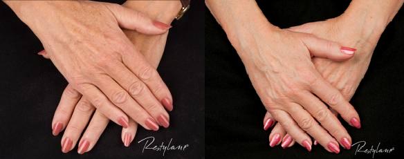Bilde av to damehender før og etter behandling med restylane. Rynkene og huden er glattere etter behandling.