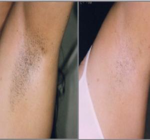 før og etterbilde av ipl hårfjerning